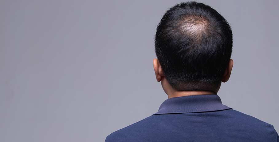 Risker i samband med en hårtransplantation